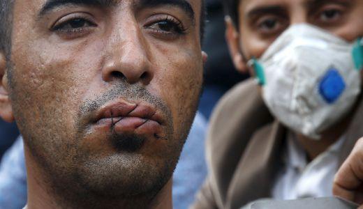Ройтерс - мигрант си заши устата